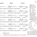 Terremoto in Italia centrale del 24 agosto: la stima della magnitudo dell'INGV – NOTA STAMPA INGV